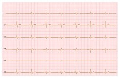HTML5 Canvas ECG wave line